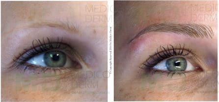 Microblading : le maquillage permanent tendance des sourcils