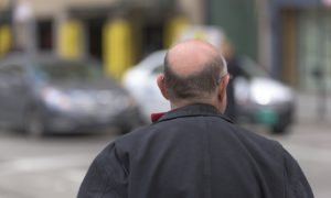 Pourquoi avoir recours à la greffe de cheveux ?
