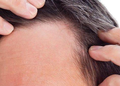 Spécialiste depuis 18 ans dans le traitement capillaire et les micro-greffes cheveux à Paris